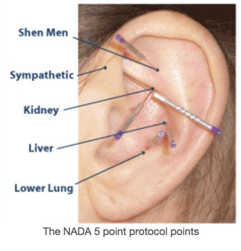 Harlem Clinic Acupuncture Detox by Nada For Nada Acudetox Not Effective In Addiction