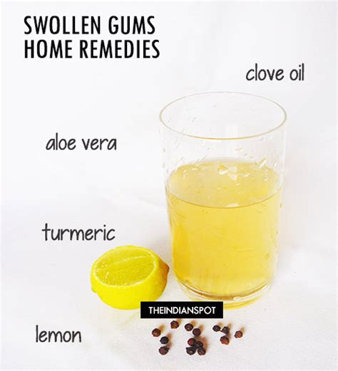 swollen gums home remedies