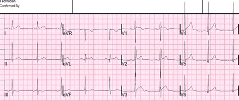 street pattern types dr smith s ecg blog is this type 2 brugada syndrome ecg