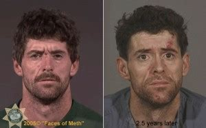 Best Way To Detox From Meth At Home by Meth Addiction Treatment Center Methhetamine