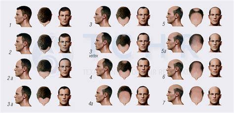 male pattern hair loss scale male hair loss in dallas tx