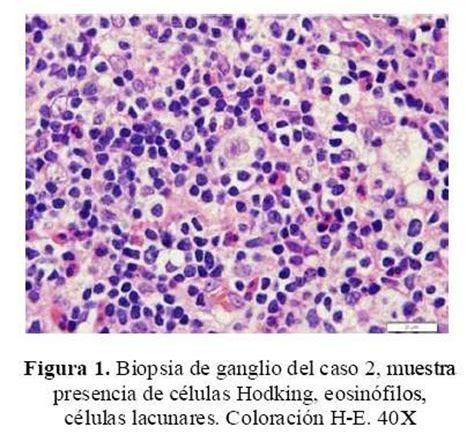 imagenes histologicas pdf s 237 ndrome nefr 243 tico y linfoma de hodgkin reporte de dos casos