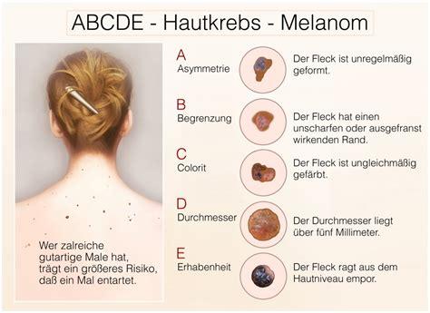 Garten Wolfsmilch Gegen Hautkrebs 6720 by Hautkrebs Risiken Behandlung Und Vorsorgema 223 Nahmen