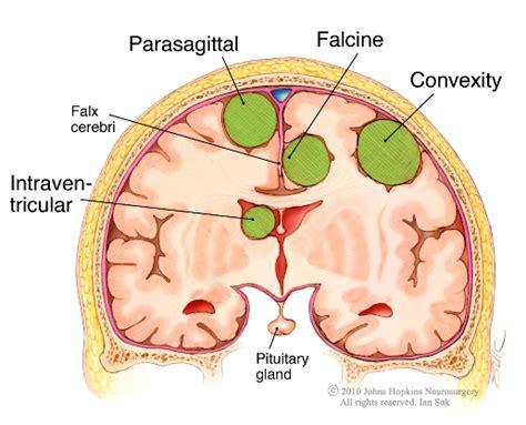parasagittal section meningioma meningiomas multiple meningiomatosis benign