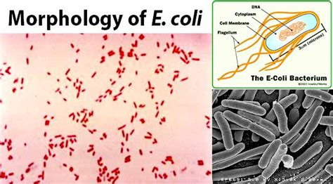 e coli morphology pictures to pin on pinterest pinsdaddy