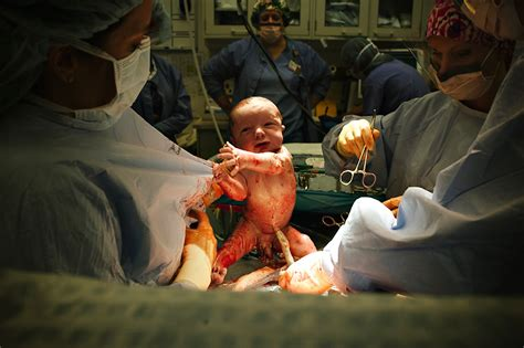 cesarean section birth the cesarean birth of john cbell singleton photo essay