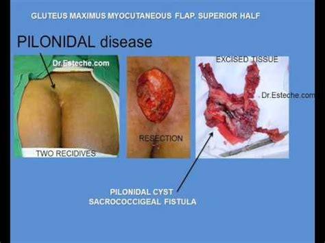 pilonidal cyst diagram pilonidal disease gluteus maximus myocutaneous flap