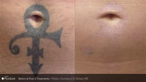 remove new tattoo laser ink picosure laser removal specialists