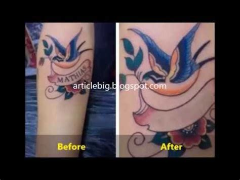 how to get rid of a tattoo removal cost get rid discounted price