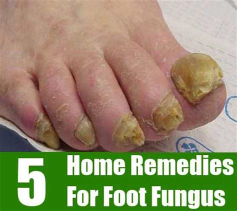 home remedies for foot fungus home remedies for foot fungus treatments cures