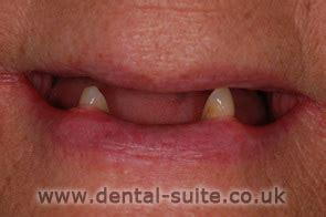 dr kalpesh bohara cosmetic dentistry expert loughborough