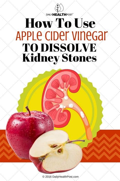 How To Detox Kidney Stones by How To Use Apple Cider Vinegar To Dissolve Kidney Stones
