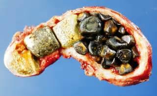 acholischer stuhl gallstones oddi