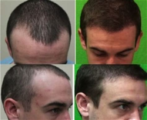 How To Fix An Afro Hairline | hairline repair dermhair clinic los angeles 1 310 318 1500