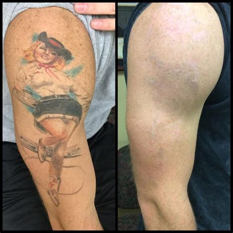 tattoo removal after absolute laser tattoo removal 42 photos 19 reviews
