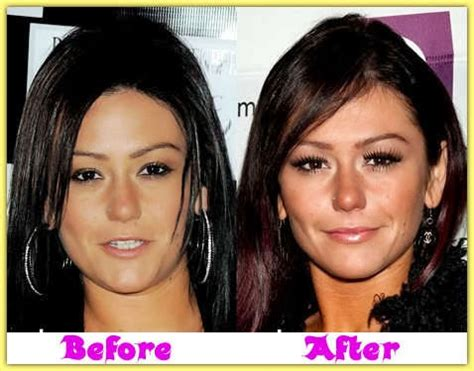 jenni jwoww before and after plastic surgery breast jenni farley jwoww plastic surgery before and after breast