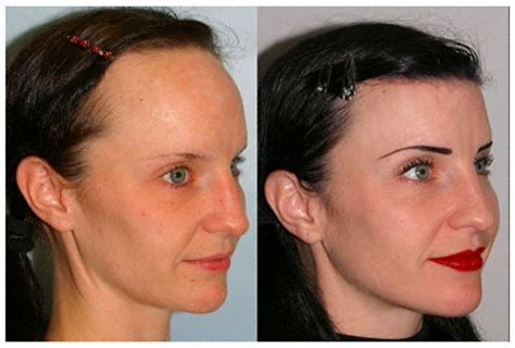 hairline implants forehead reduction surgery just breast implants forum