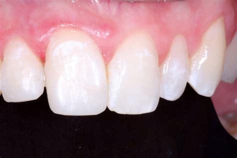 gallery comprehensive family dental