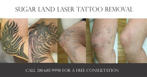 sugar land laser removal prices in houston tx
