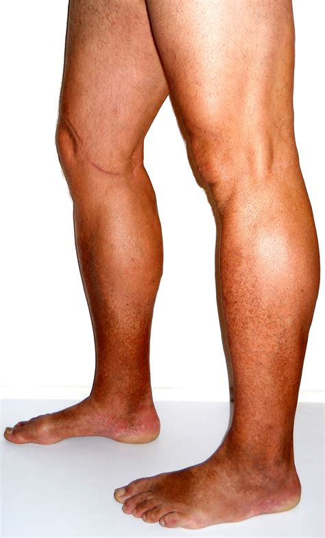 The Leg L by Venous Insufficiency Causes Treatment More Laser Lipo Vein Center