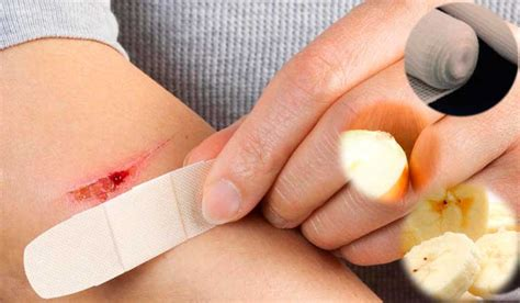 how to stop bleeding on a how to stop bleeding authority remedies