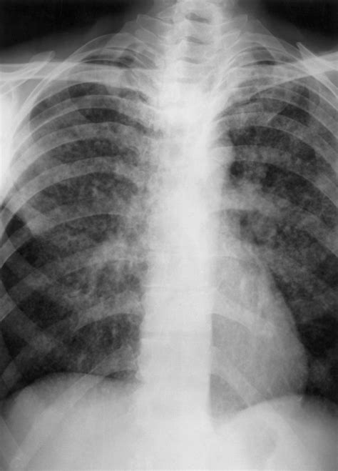 Extrapulmonary Tuberculosis (TB) - Infectious Diseases