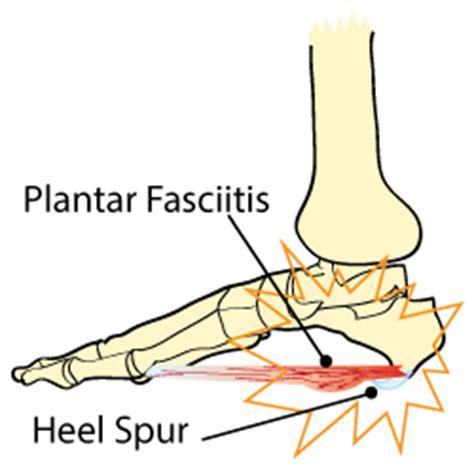 plantar fasciitis diagram king brand foot images