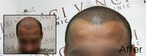 scalp micropigmentation to make hair ticker pictures scalp pigmentation and hair transplant procedure vinci hair