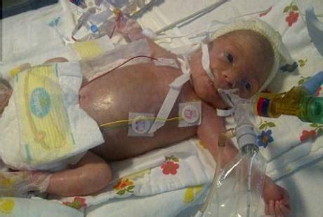 Ranjang Bayi Rumah Sakit bayi 11 hari meninggal di rumah sakit karena petugas malas cuci tangan linjunxia97 s