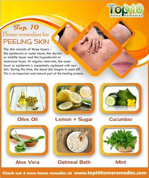 Does A Shower Help A Sunburn by Home Remedies For Peeling Skin Top 10 Home Remedies