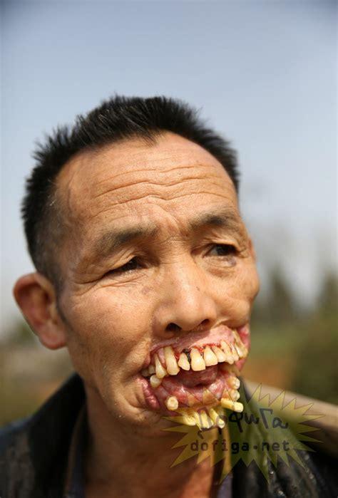 face of a 64 yr old woman homem com os dentes fora da boca arrepiante extraincrivel
