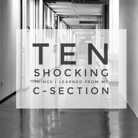 10 Shocking Things I Learned From My C Section