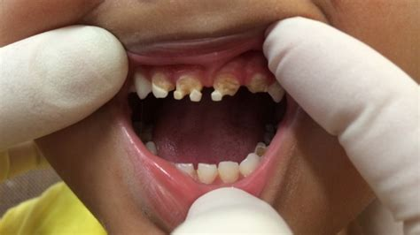 Sugary drinks and junk food blamed as kids have rotten baby teeth