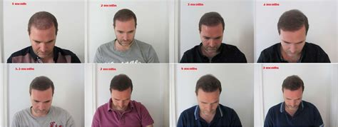 hair transplant month by month pictures my progress month by month timeline in pictures uk hair