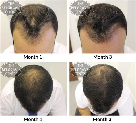 pictures of hair growth month by month after chemotherapy by people hair growth success saw an improvement after just a