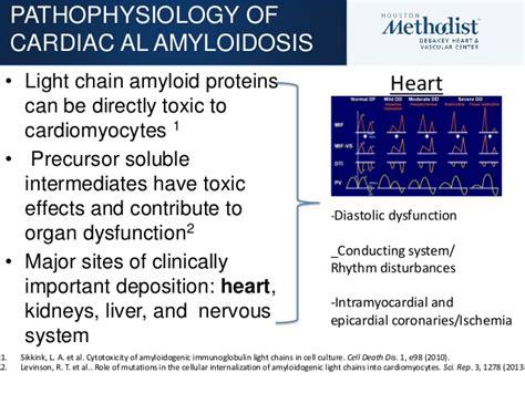 myeloma and al amyloidosis