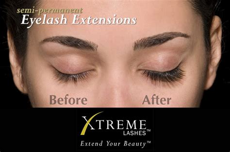 Extended Detox Reaction by Eyelash Extension Faq S
