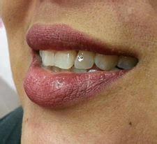 Berapa Untuk Pemutihan Gigi klinik pergigian balik pulau rawatan gigi palsu