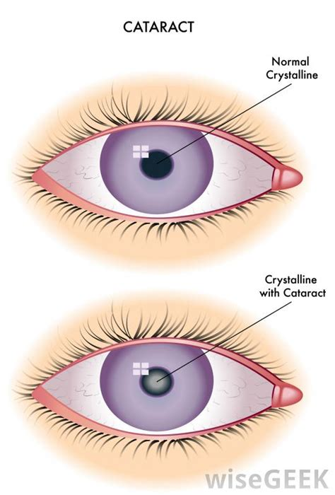 How To Fix Night Blindness How Do I Treat Night Blindness With Pictures