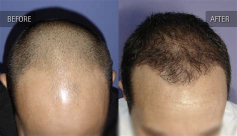 hair transplants 1000 graft coverage before and after photos of hair transplant clients
