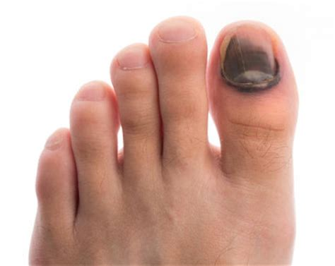 dead nail bed is my black toenail caused by fungus