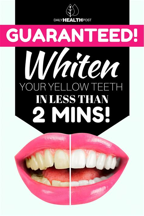 whiten  teeth naturally     minutes