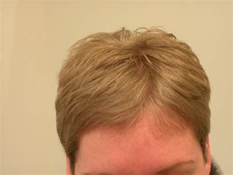 hair color for 58 year old loss of hair on 58 year old women hair color for 58 year