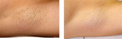 mens brazilian laser hair removal male brazilian laser hair removal video hairstyle gallery