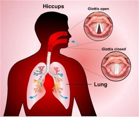 10 Foods To Get Your In A Spicy Mood by Why Do I Get Hiccups Every Time I Eat Spicy Food Quora