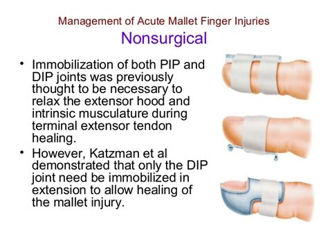 thumb laceration thoughts foundation mallet finger