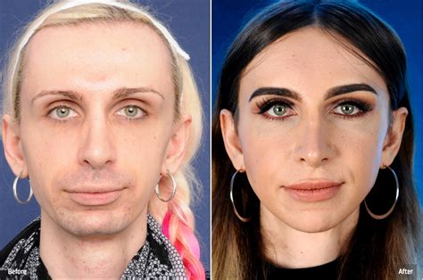 mtf ffs facial feminization surgery before and after maria before and after facial feminization surgery 2pass