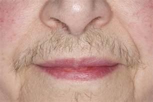 thick pubic hair hirsutism