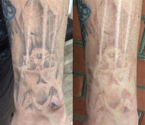 how effective is tattoo removal 72 best laserless removal effective