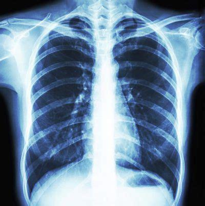 how do effusion ls work lungs calcium livestrong com